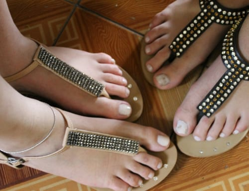 サンダルと靴ずれ