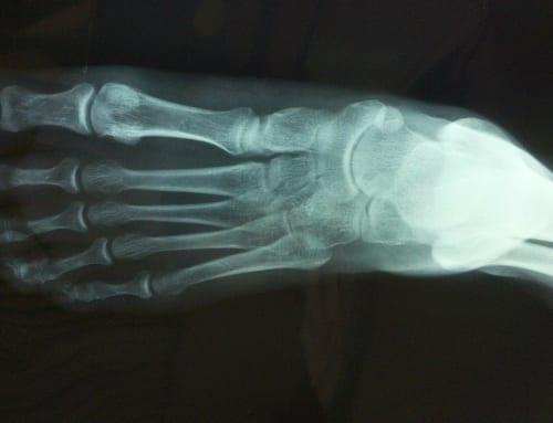 全身の1/4の骨は足にあり!