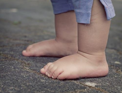 人生最大の足の浮腫み!